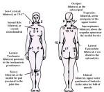 fibromyalgia-tender-points
